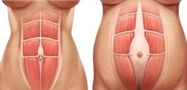 Un problème de diastasis de l'abdomen ? Consultez en ...