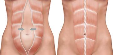 Diastasis abdomen